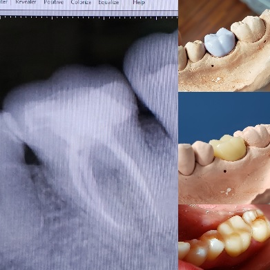 root canal treatment and cerec crown