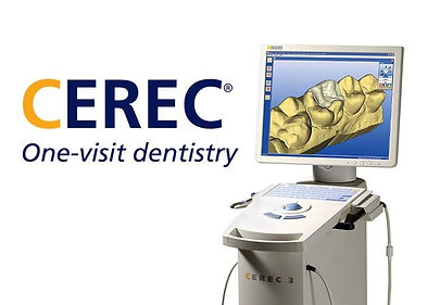 cerec single appointment crown simply endo tijuana