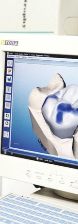 Metal free crowns with our CEREC system