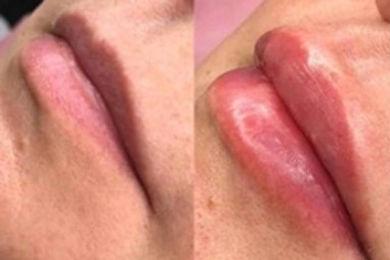 no-needle-lip-filler1.jpg