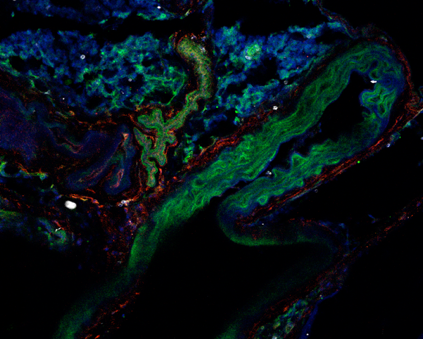 Aortic ckit+ cells contribute to vascular homeostasis