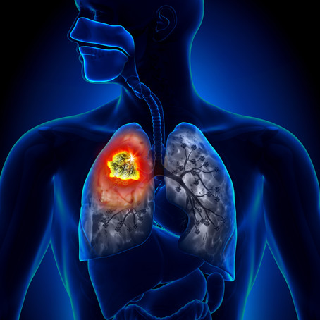 Delayed Lung Cancer Diagnosis from Hampton VAMC Gets $525,000 Pre-Suit Settlement