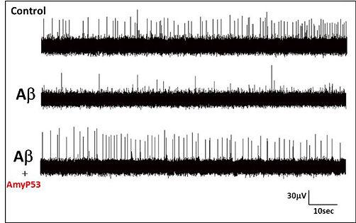 AmyP53 hippocampe.jpg