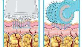 Het verschil tussen micro needling en meta therapy