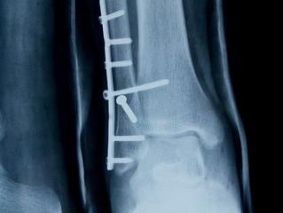 """""""Скрепление костей """"  используя малые доступы во время операции."""