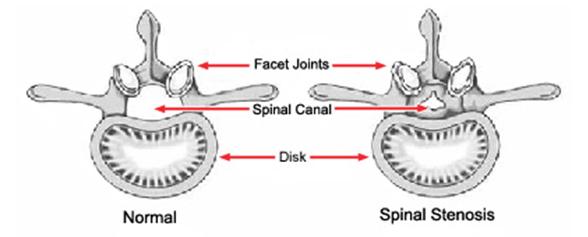 Normal Vertebra vs. Vertebra with Spinal Stenosis