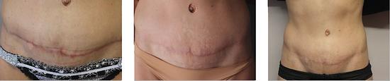 cicatrice résultats srs