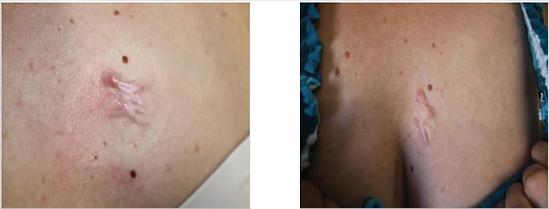 acné résultats srs