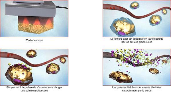Épilation laser SHR séance