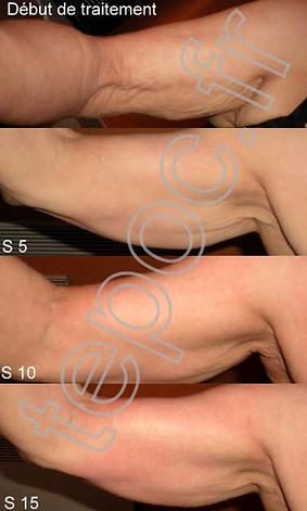 wavelifting résultat bras