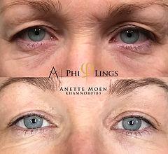 Øyelokksløft med Plasmapen