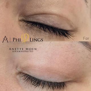 Plasmapen upper eyelids