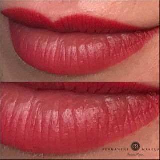 Staight after PMU of lips