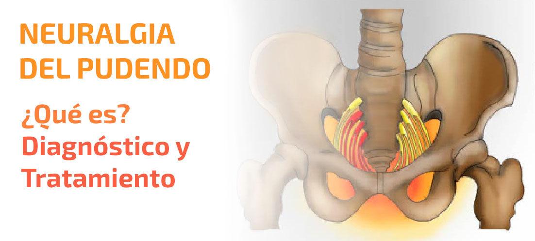 tratamiento del dolor del nervio pélvico