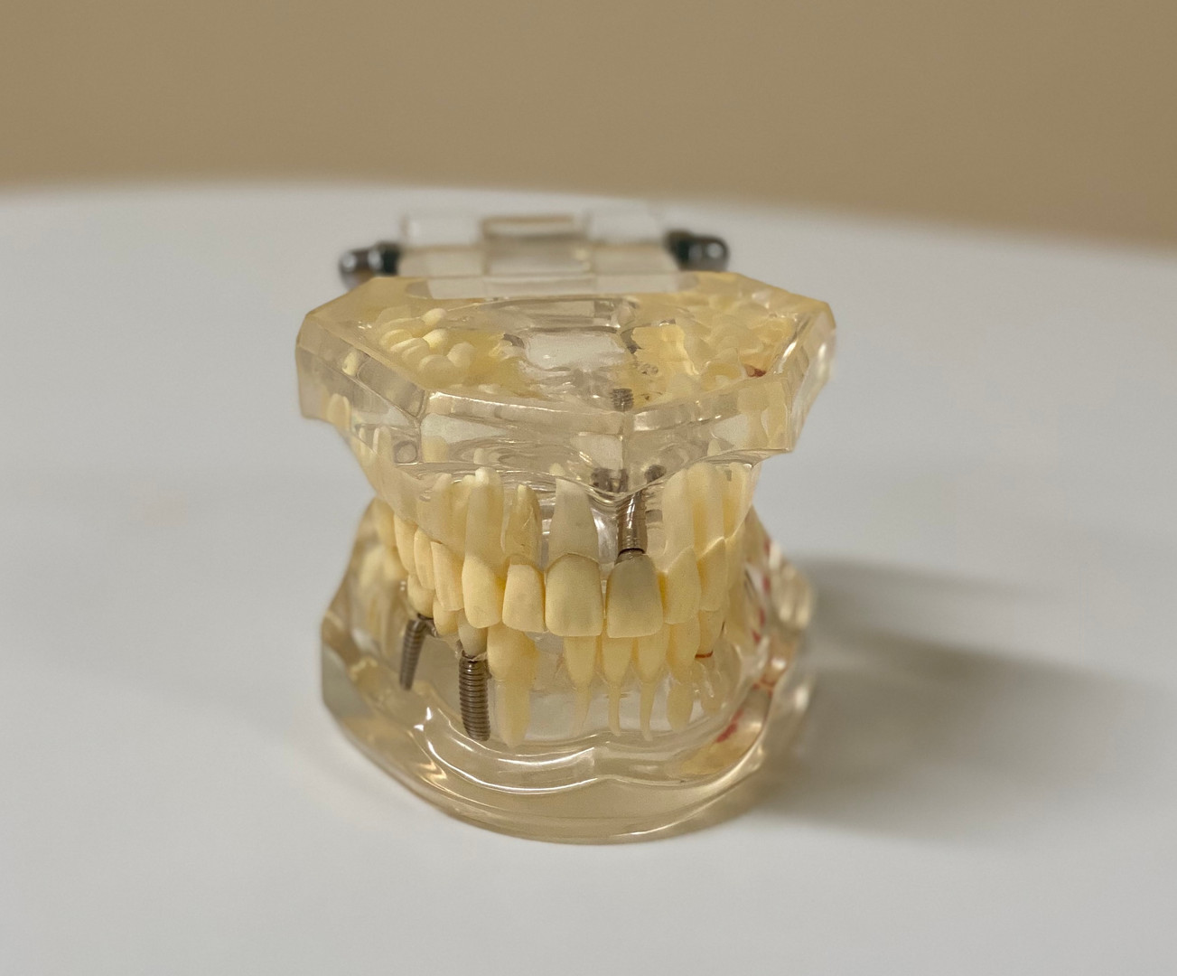 Implantatmodell