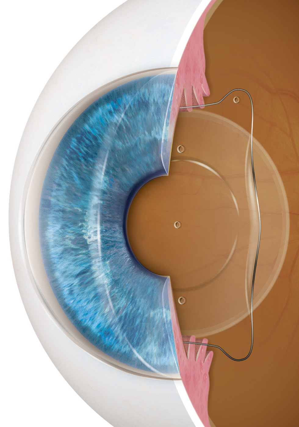 intraocular lens implant recovery time