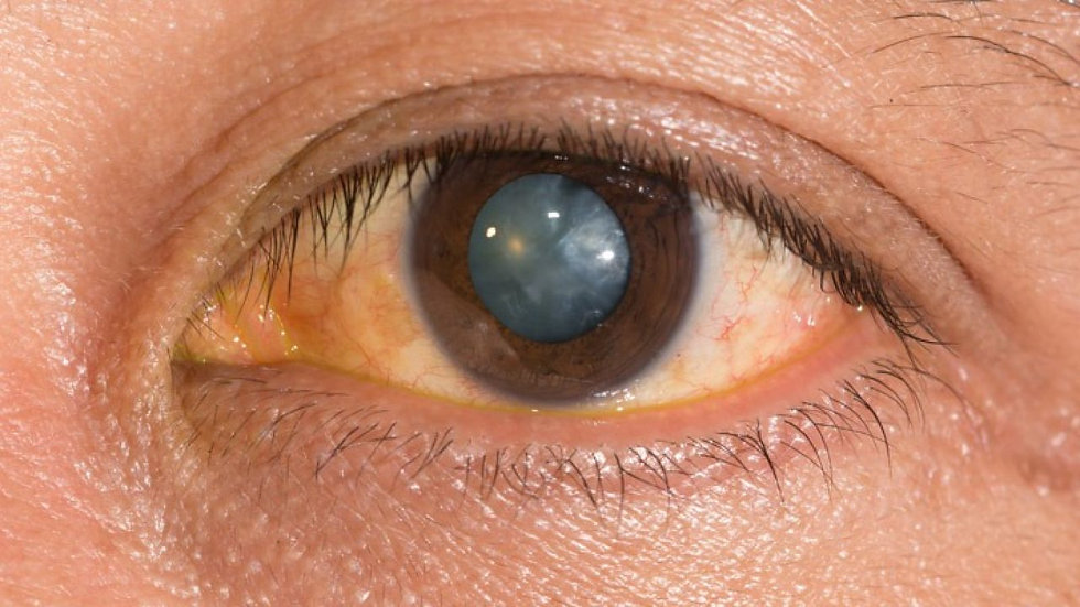 cataract lens laser cleaning