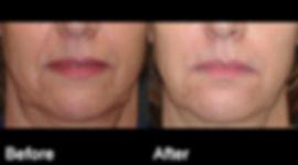 Facial filler1.jpg