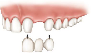 dental bridge.png