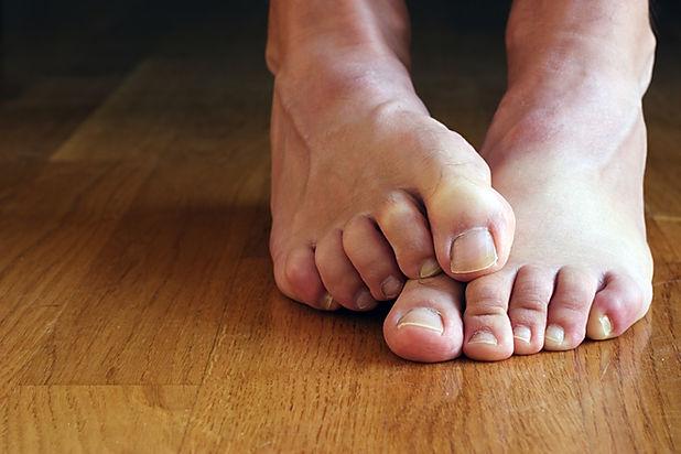 Fotolia_emb feet.jpg
