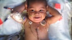 transplant 3