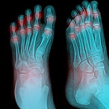 Arthritic foot x-ray - we offer care for