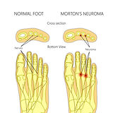 Mortons Neuromas, compressed nerves and