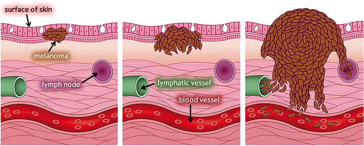 Melanoma Diagram.jpg