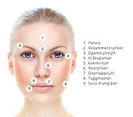 botoxbehandling mot migrän
