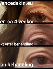 Fibroblast, ögonlockslyft