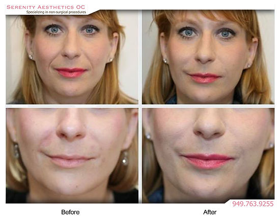 Juvederm Volbella before & after photo
