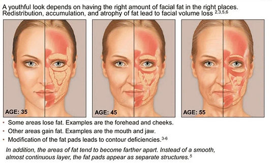 facial aging forehead cheeks mouth jaw cosmetic injections