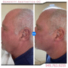 Male Ultherapy non surgical face lift