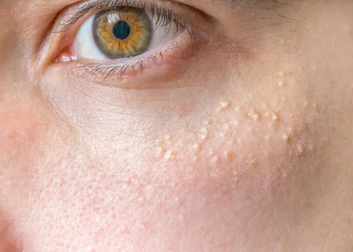 Do you suffer from white spots or what appear to be white heads on your face ?