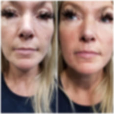 Collagen Radiese before and after photo