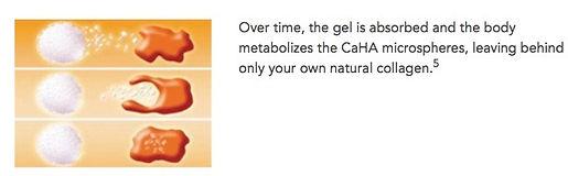 Gel natural collagen Radiesse