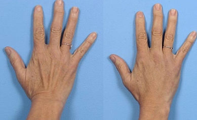 under eye fillers anti wrinkle