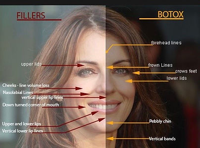 Dermal Fillers Botox face forehead upper lids neck photo