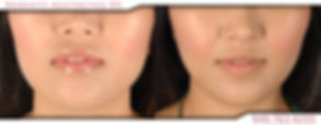 Radiesse collagen skin mouth cheeks before & after photo