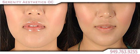 Radiesse collagen skin mouth cheeks before & after photo