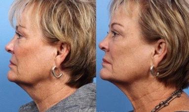 Lift Tighten Skin Neck, chin, brow