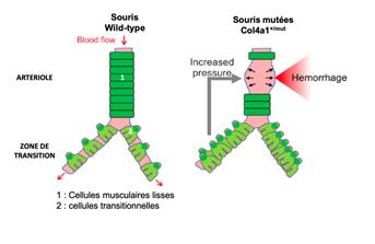 La réduction de l'hypercontractilité de la jonction entre artérioles et capillaires diminue...