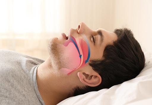 Riscos da Apneia do Sono