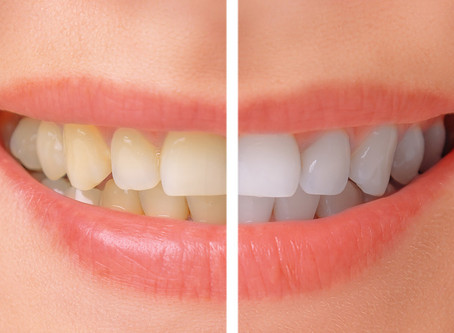 Can Yellow Teeth Be Whitened?