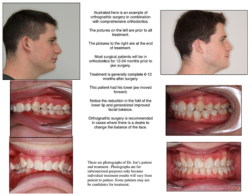 Impact Orthodontics Orthognatic Surgery Example 1.png