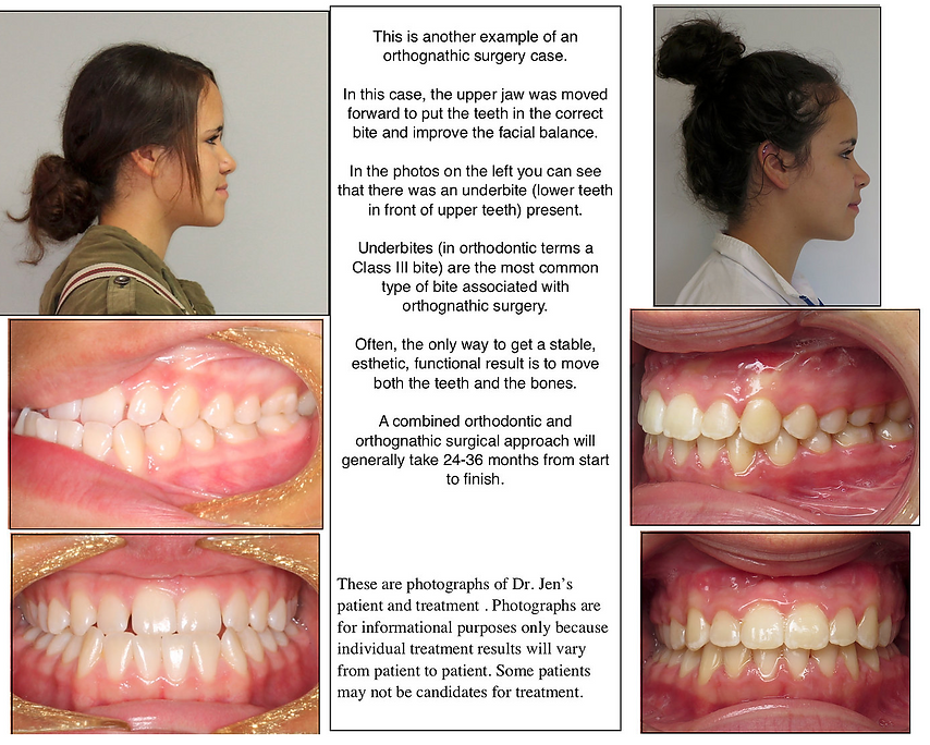 Impact Orthodontics Orthognathic Surgery Example 2.png
