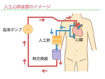 人工心肺装置のイメージ