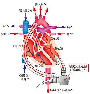 VADイメージ図