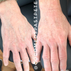 hand-rejuvenation.JPG