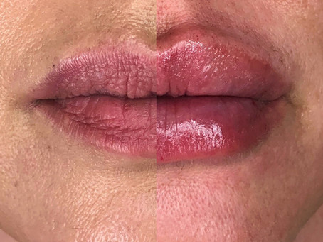 Must See Lip Filler Results